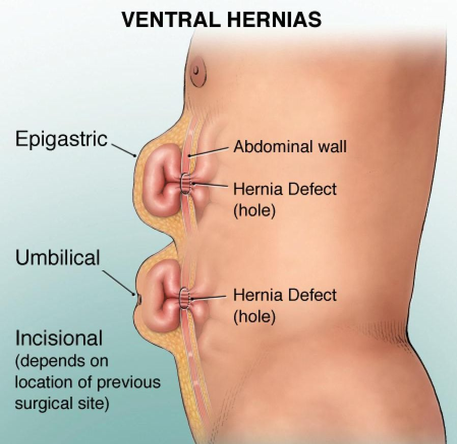 hernia and egeus relationship tips