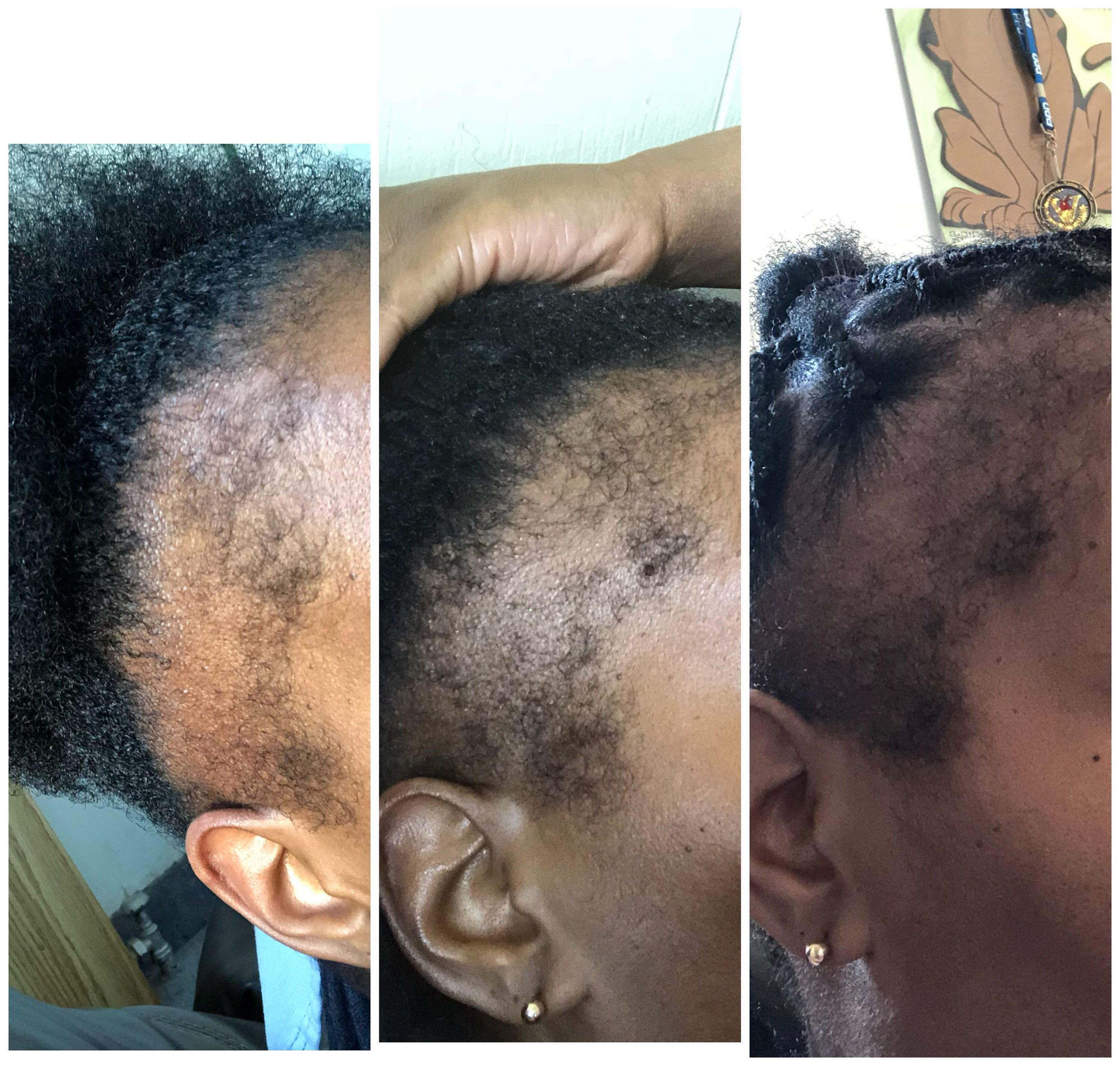 Hair Growth And Regrowth Edges Hair Regrowth How To Grow Natural Hair