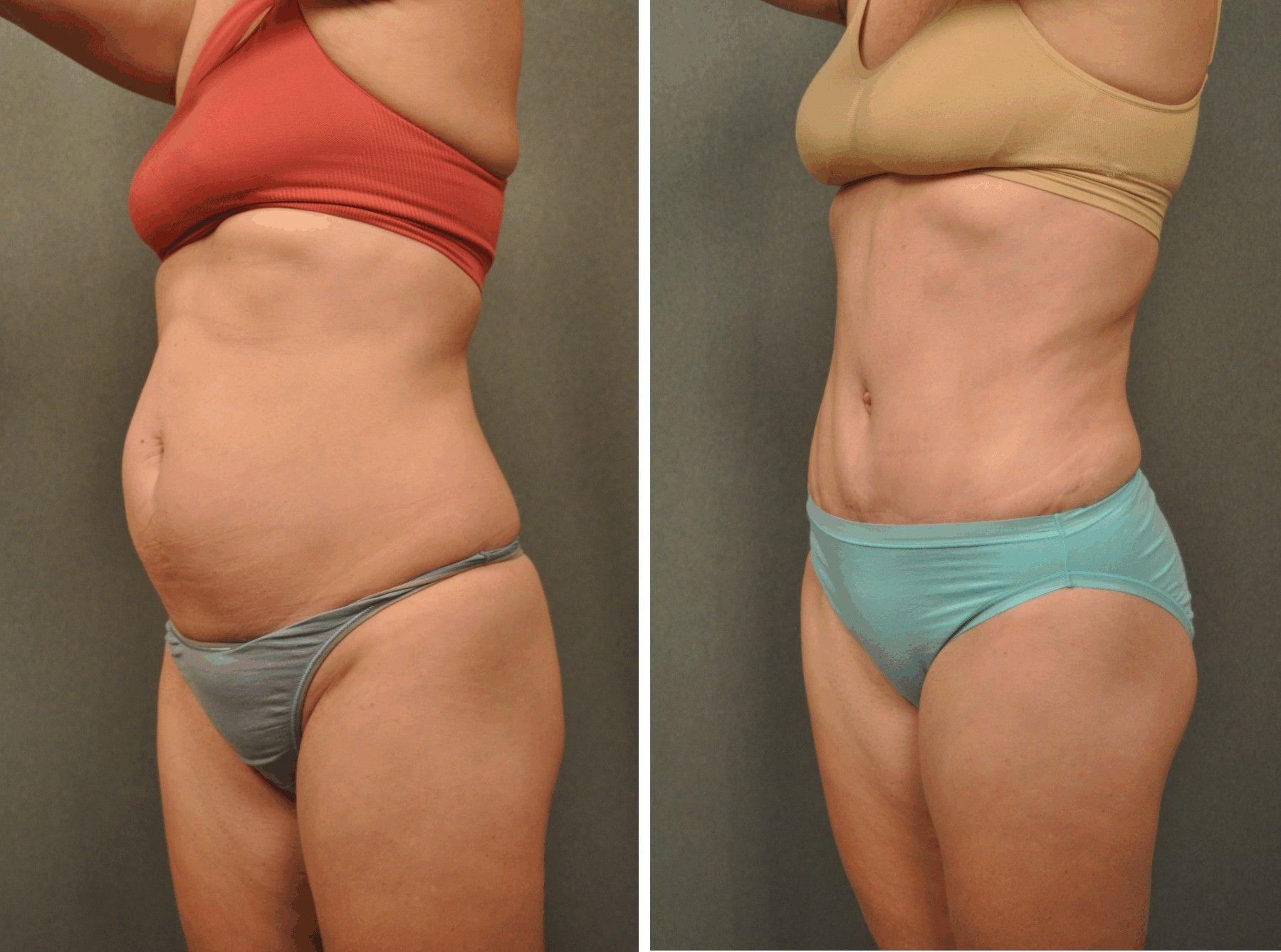 Похудеть срочно перед операцией