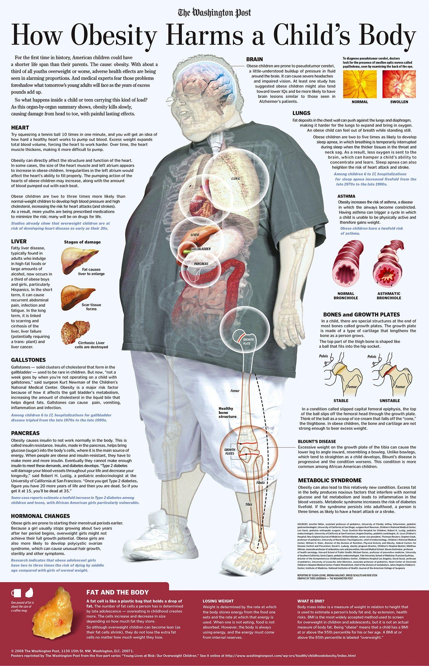 The Dangers Of Obesity In Children