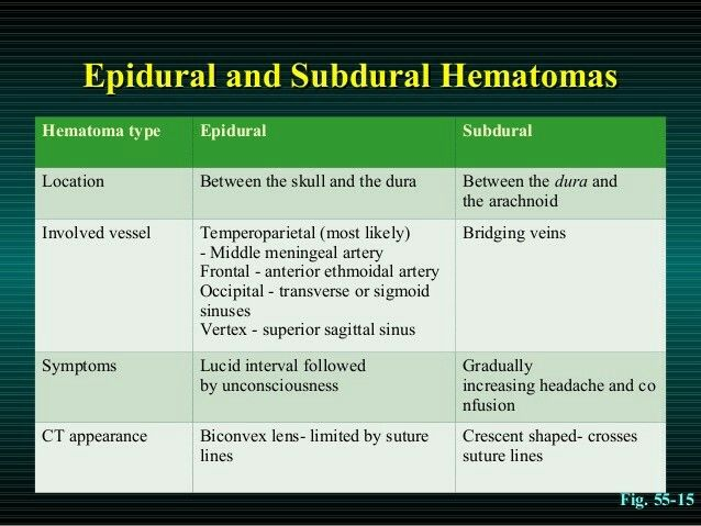 Vs hematoma hematoma subdural epidural Difference Between
