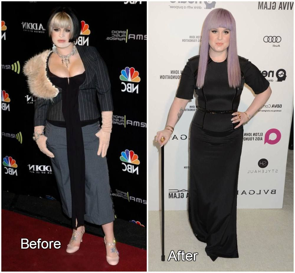 Kelly Osbourne has lost weight because of drugs 10/20/2009 97