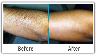 Nothing Found For Arms Laser Hair Removal Results Laser Hair