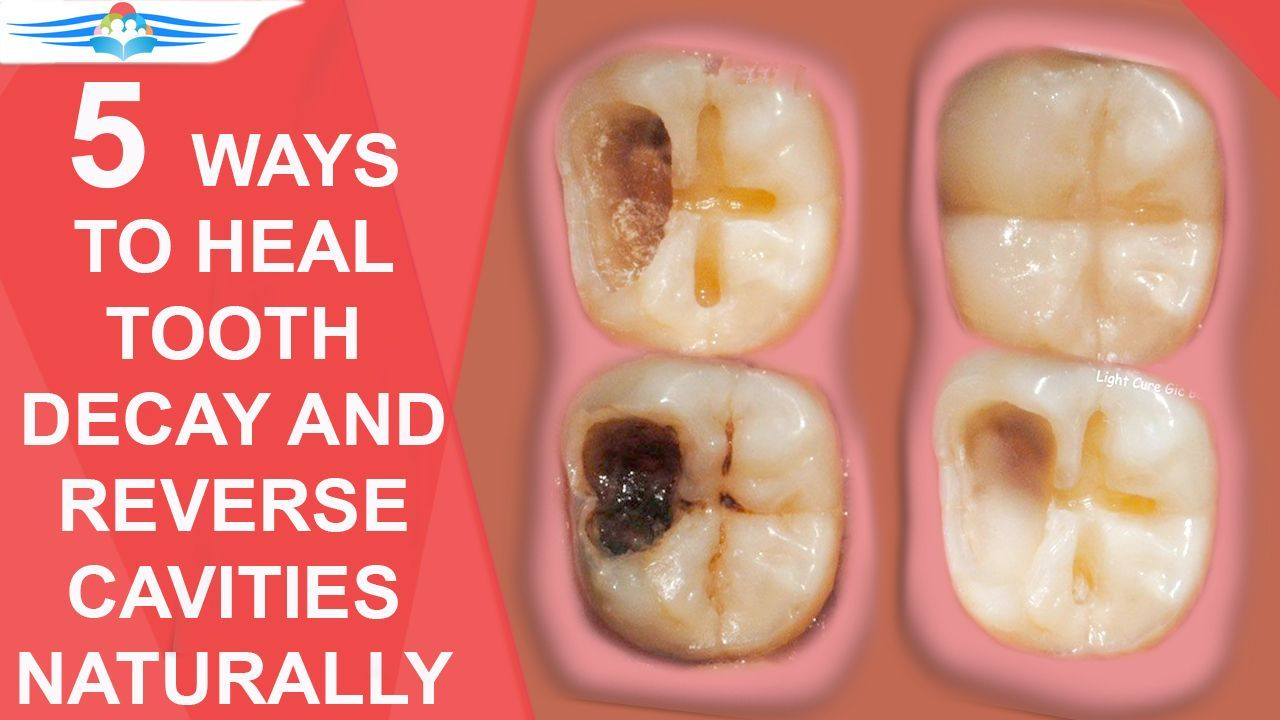 Pin on Tooth Decay Roots