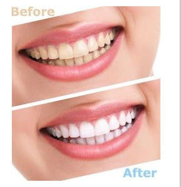 Are dentures liner plastic strip