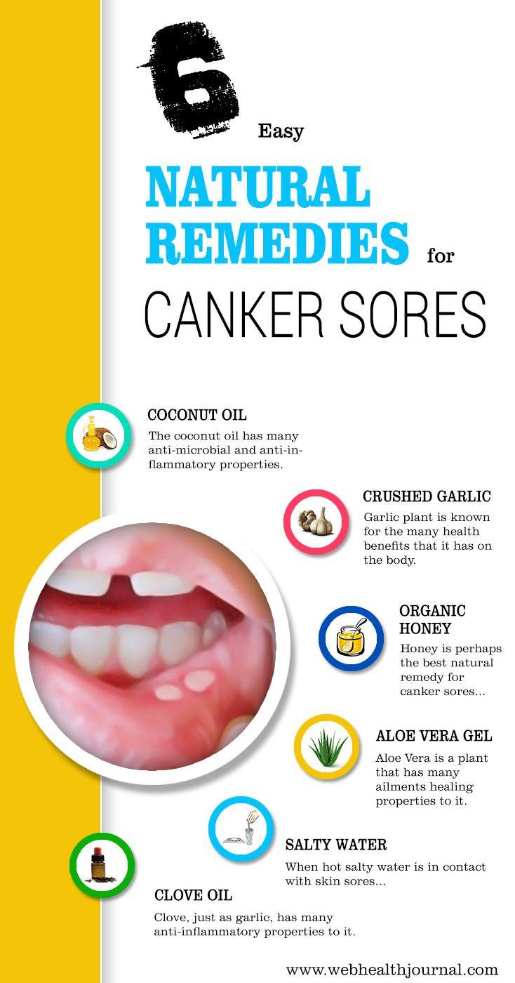 Watch Honey Heals Canker Sores video
