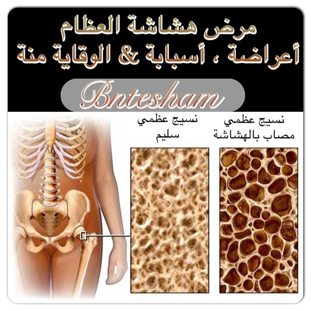 التعريف بمرض هشاشة العظام العظام الطبيعية هي عبارة عن مجموعة من الصفائح الرقيقة والمغلفة وعندما تنقص الانسجة في العظام تزيد الثقوب في Health Diet Conditioner