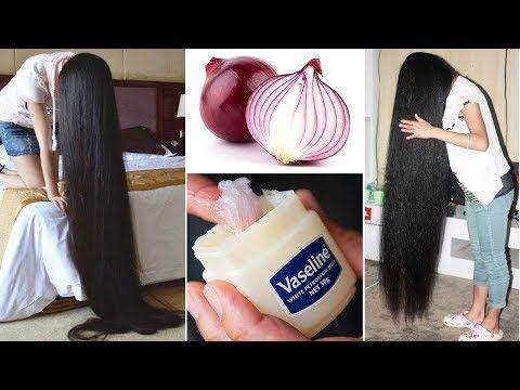 كيفية استخدام الفازلين والبصل لتطويل الشعر 2سنتيمتر في اليوم سريييع جداااا Youtube Grow Hair Vaseline For Hair Natural Hair Growth Remedies