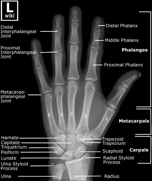 Radiographic Anatomy - Hand AP | Radiology student ...