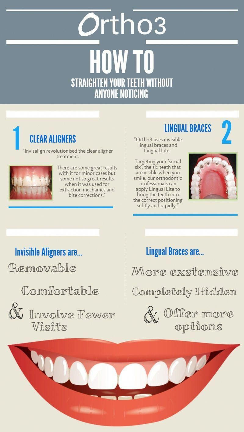 how much does it cost to get teeth whitened at the dentist