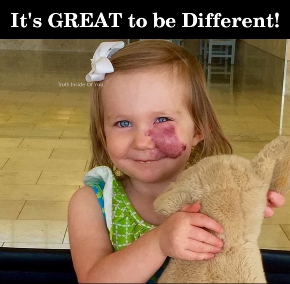 It's Great to be different! Birthmark, Port wine stain