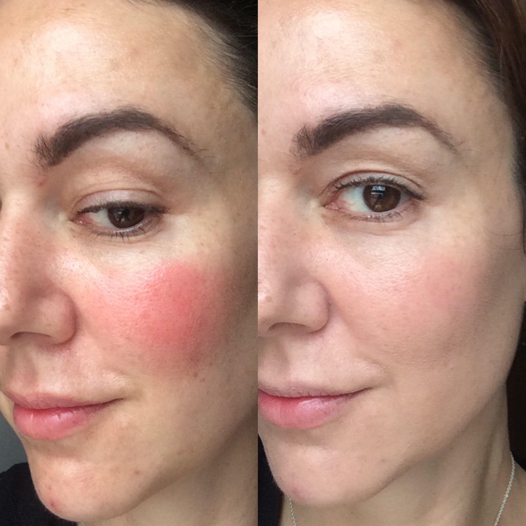 Laser facial paralisia