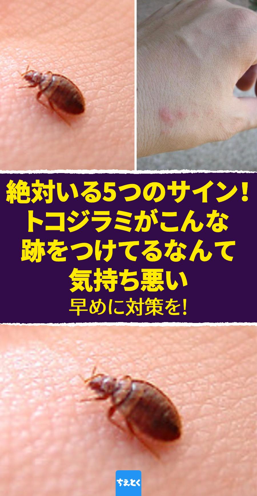 トコジラミ対策 寝室に潜む害虫トコジラミの5つのサイン トコジラミ対処法 対策 南京虫 吸血虫 赤い斑点 ベッドの虫 害虫対策 トコジラミ 健康な歯 代替療法