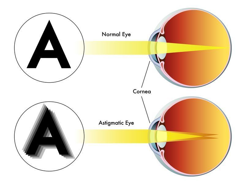Best Eye Exercises For Astigmatism Astigmatism Eye Exercises Eye Care