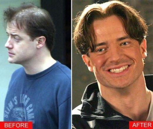 Did Brendan Fraser Get A Hair Transplant