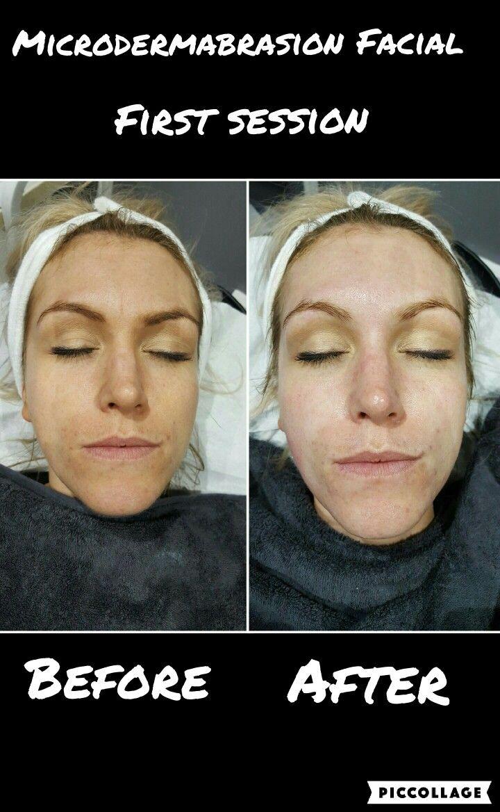 Skinbase microdermabrasion facial microdermabrasion pinterest skinbase microdermabrasion facial solutioingenieria Gallery