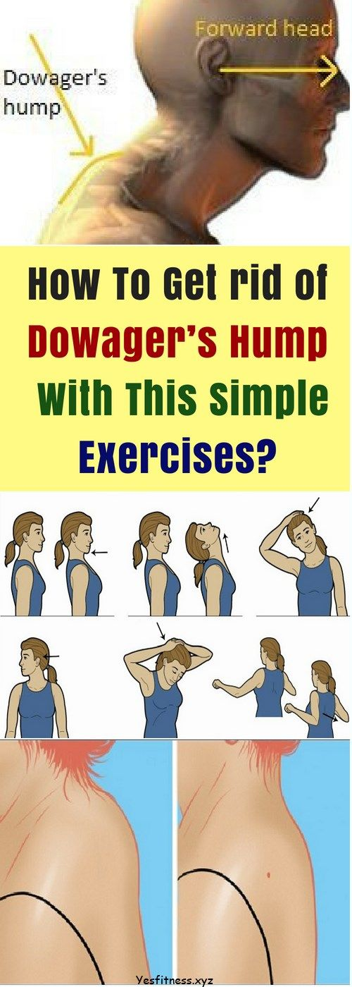 To avoid kyphosis, or a hunchback or dowager's hump, first