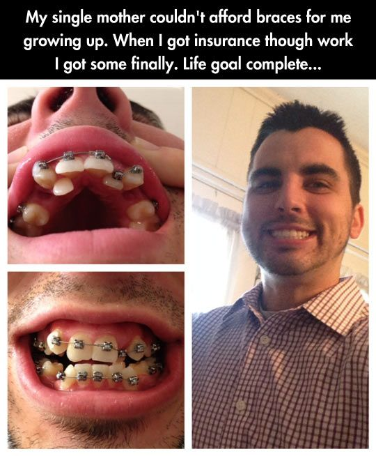 Braces Quotes BRACES SMILE QUOTES   Google Search | Orthodontic Health! | Funny  Braces Quotes