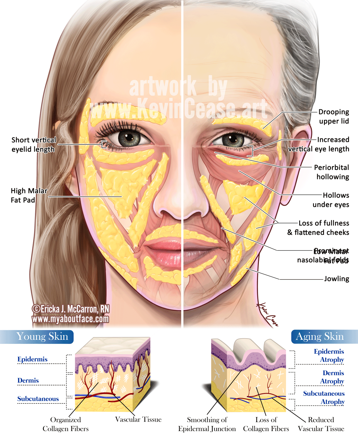 Kevin Cease Aging Skin Comparison Anatomia In 2019 Pinterest