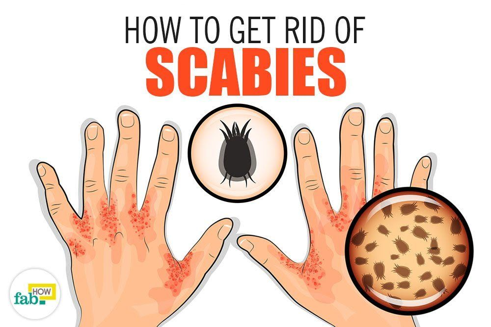 857491b09210241c54af7ab820ea1469 - How To Get Rid Of Scabies In 24 Hours