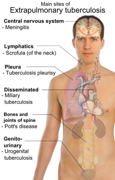 Lymph Node Tuberculosis Natural Treatment