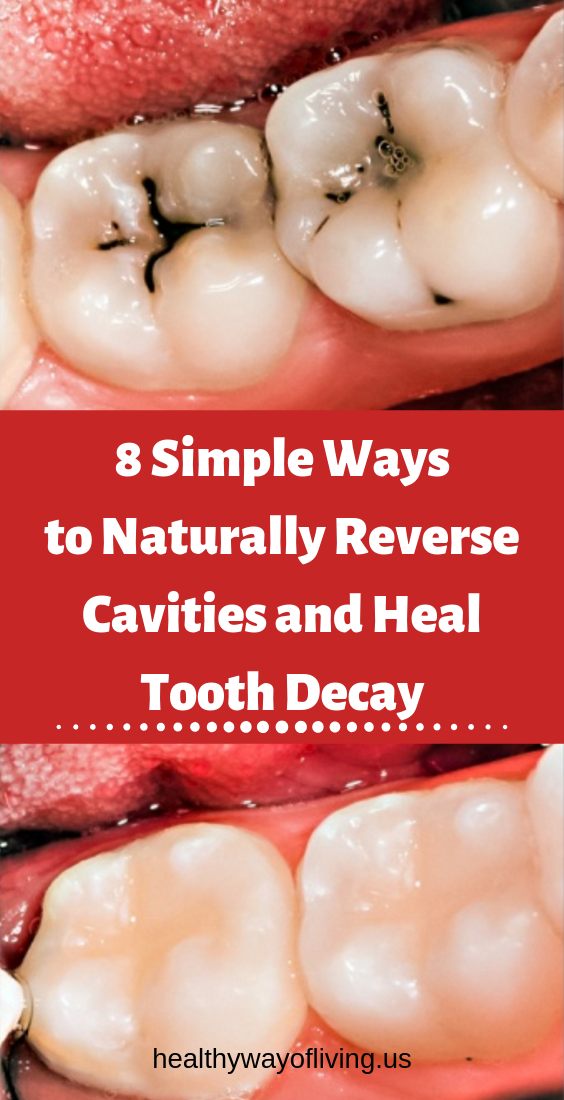 Tooth Decay Tips - Healthy Medicine Tips