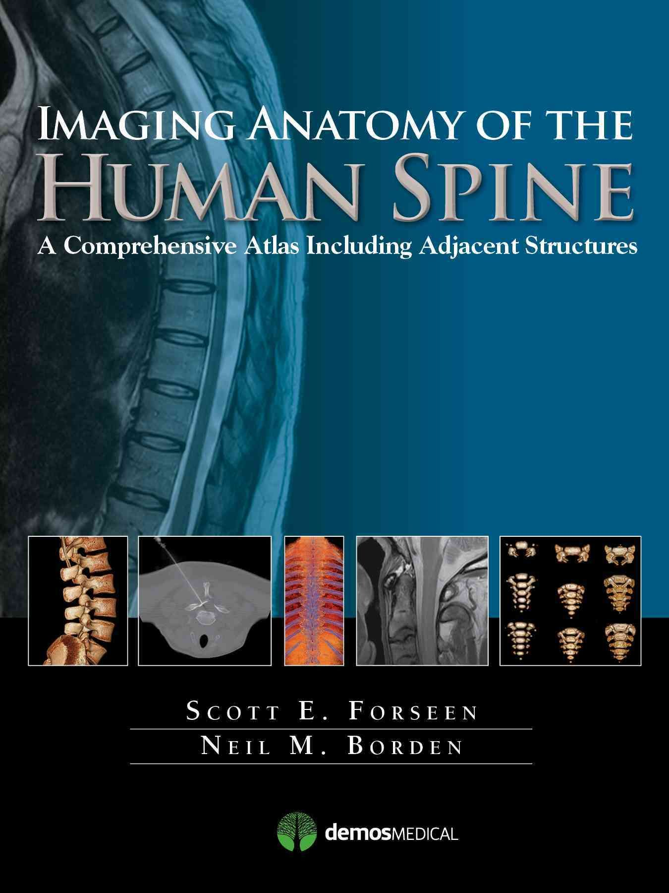 Imaging Anatomy of the Human Spine: A Comprehensive Atlas Including ...