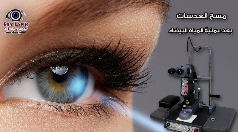 مسح العدسات بعد عملية المياه البيضاء متى نحتاج إليه Egylasik Eyes