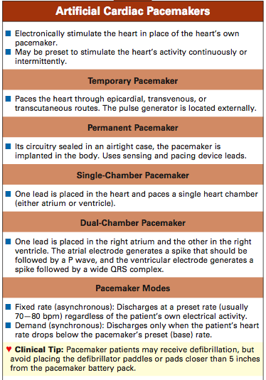 TYPES OF PACEMAKERS EPUB
