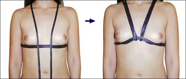 breast harness dsm pins jpg 422x640