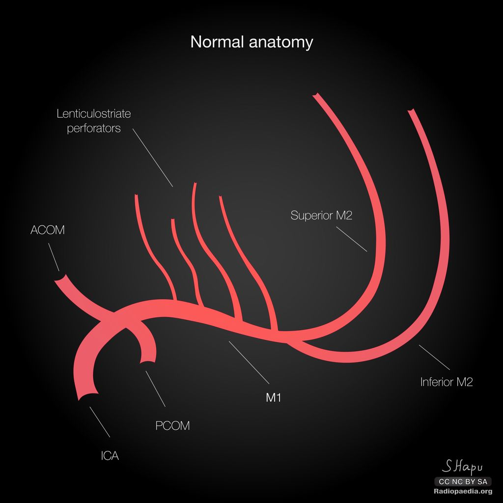 Middle Cerebral Artery Variants Diagrams Radiology Case