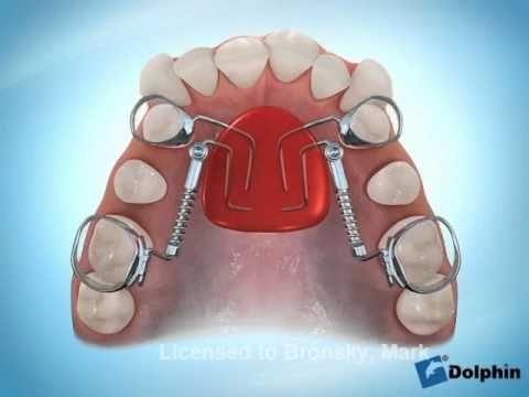 Fixed Pendulum Appliance Fpa Youtube Ortodoncia