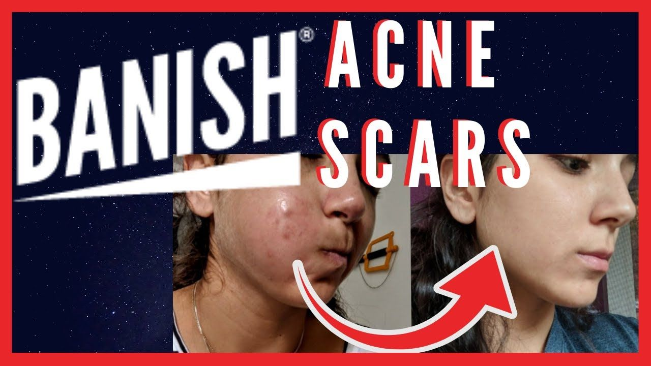 Pin On Getting Rid Of Acne And Scars