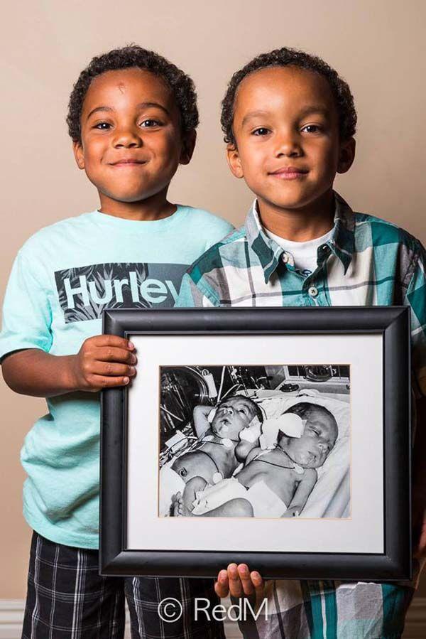 Emotivas fotos del antes y el después de nacer prematuros