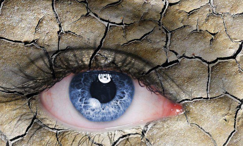 طرق طبيعية لمعالجة جفاف العين في المنزل Dry Eye Treatment Dry Eyes Dry Eye Syndrome