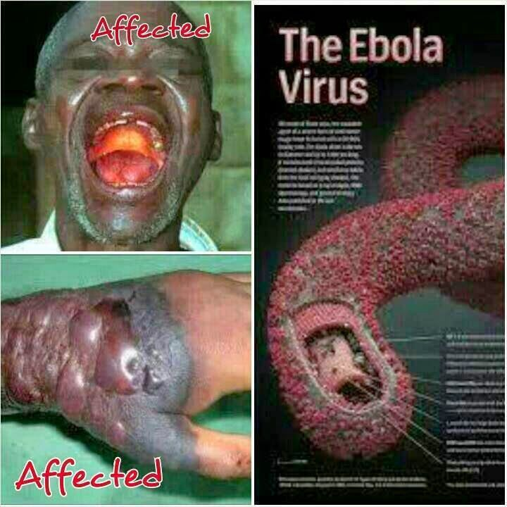 Ebola Virus Pictures of People | Categories: