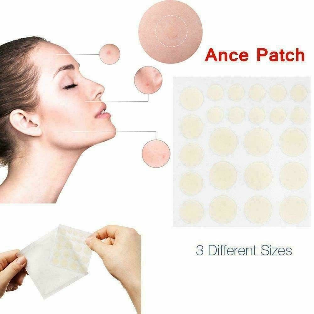 Review Skin Tag Acne Patch Absolute Review In 2020 Skin