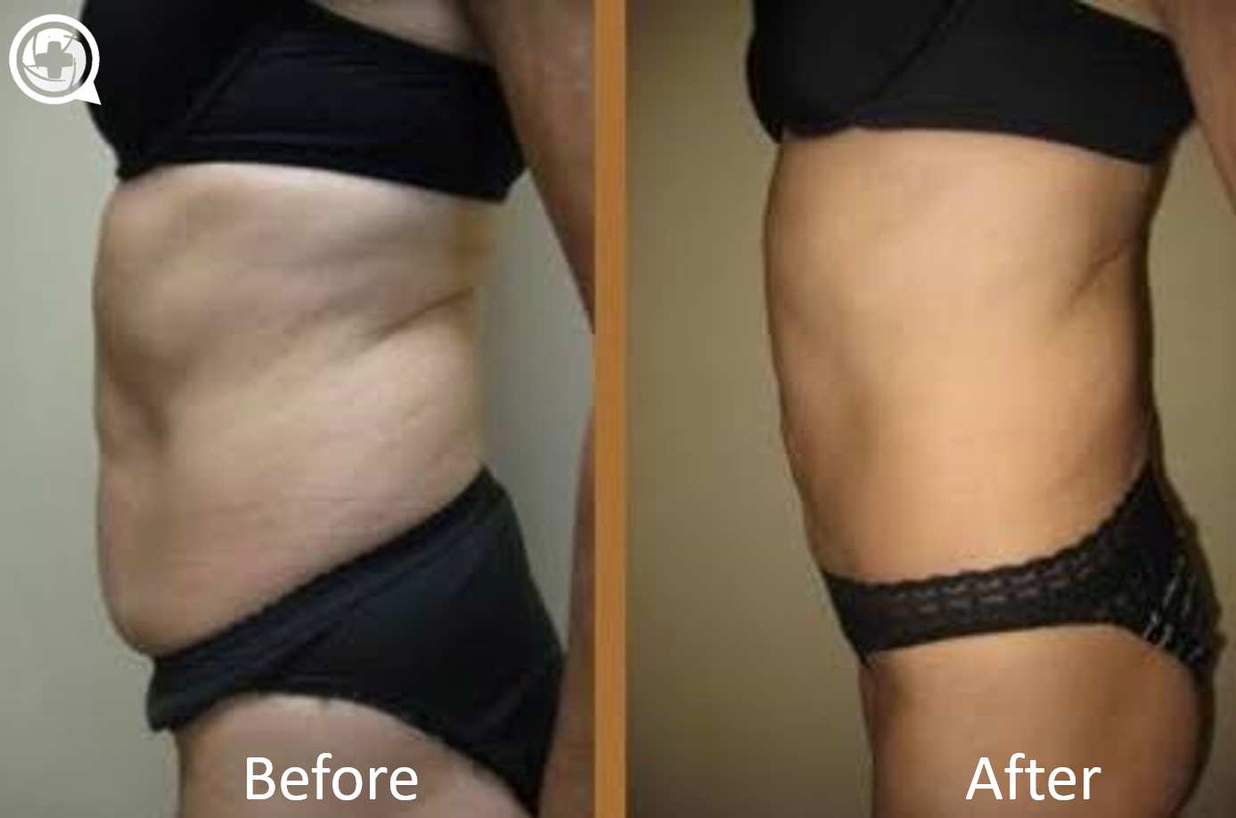 How Much Do You Need To Weigh To Get Liposuction