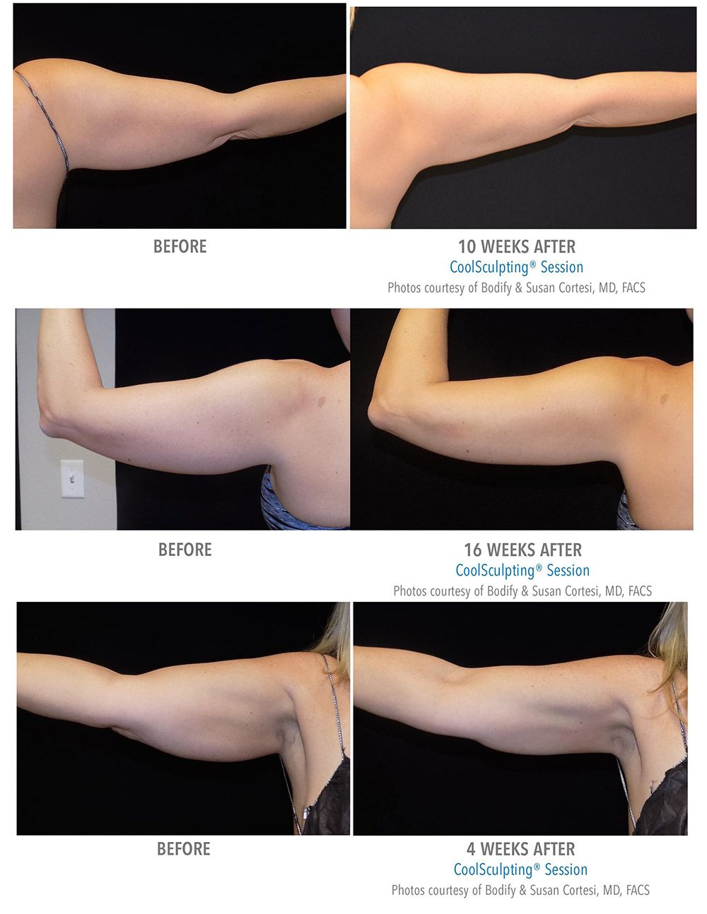 CoolSculpting Before After Pictures