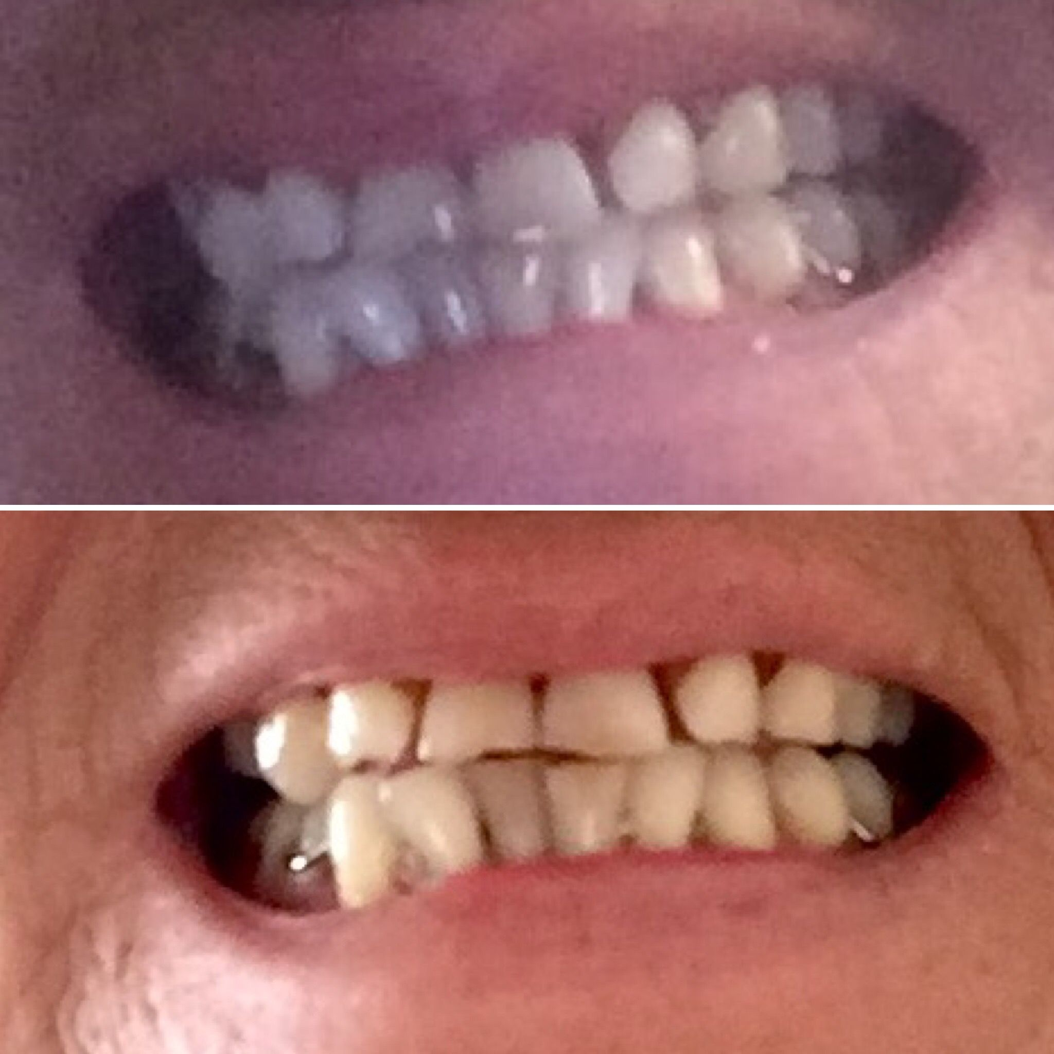 Pin auf whitening toothpastebeauty products