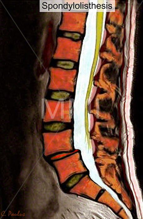 Annotated Color MRI Lumbar Spine Anatomy Spondylolisthesis | Body ...