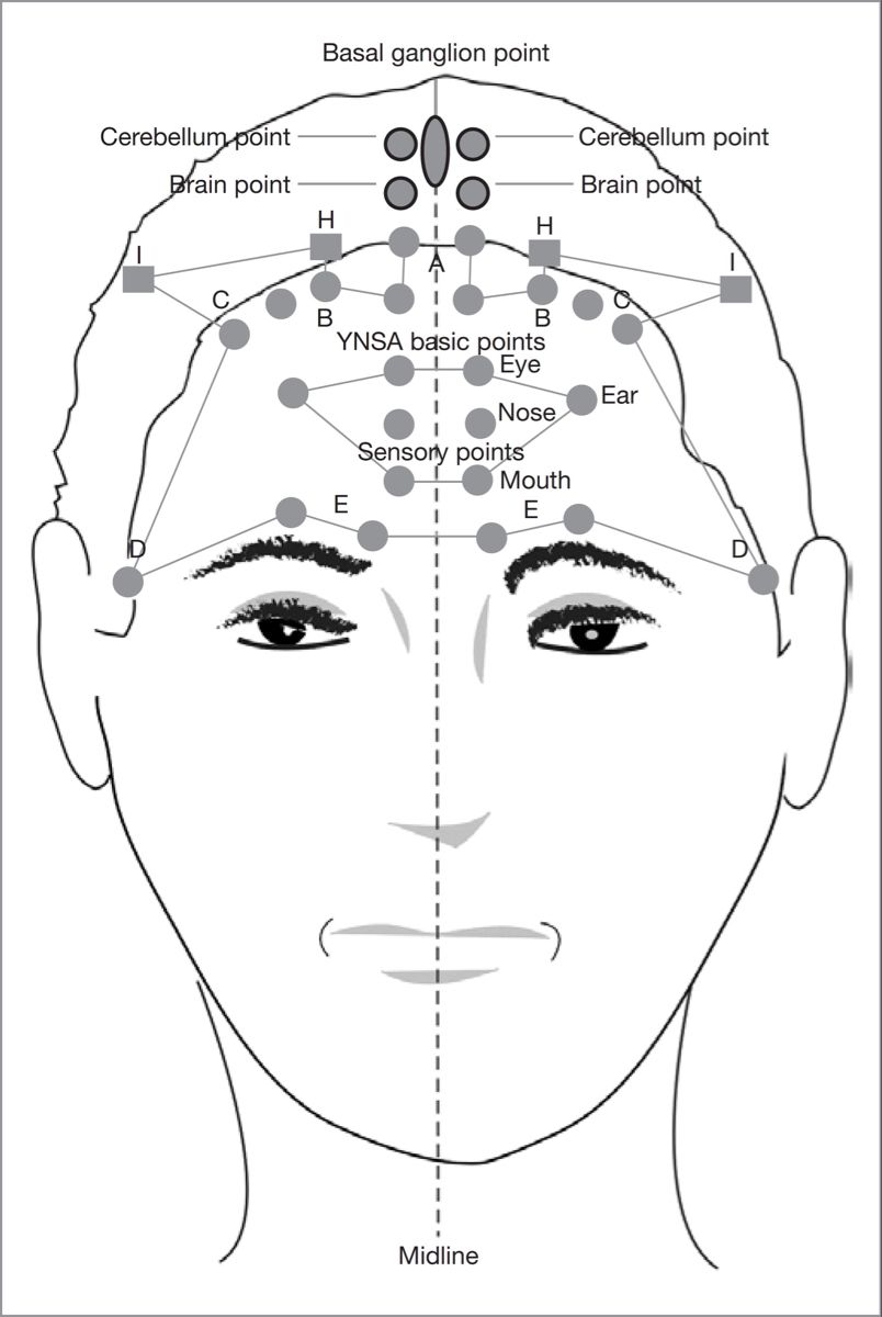 Yamamoto New Scalp Acupuncture Its Applications And Results In Painful Conditions Systematic Review Acupuncture Acupressure Treatment Yamamoto