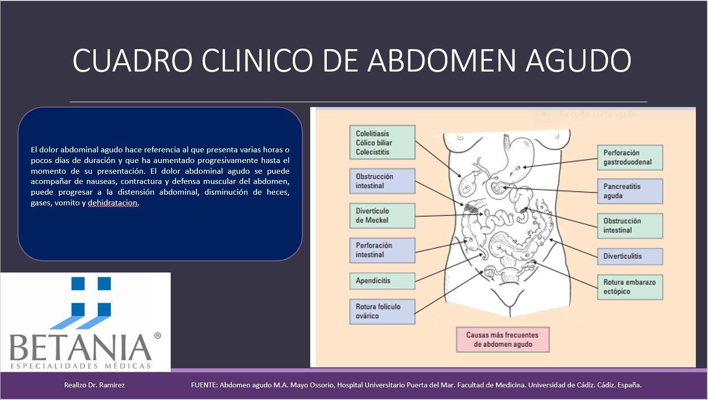 Infografía sobre abdomen agudo. Dr Ramírez. www.oncologiabetania.com ...