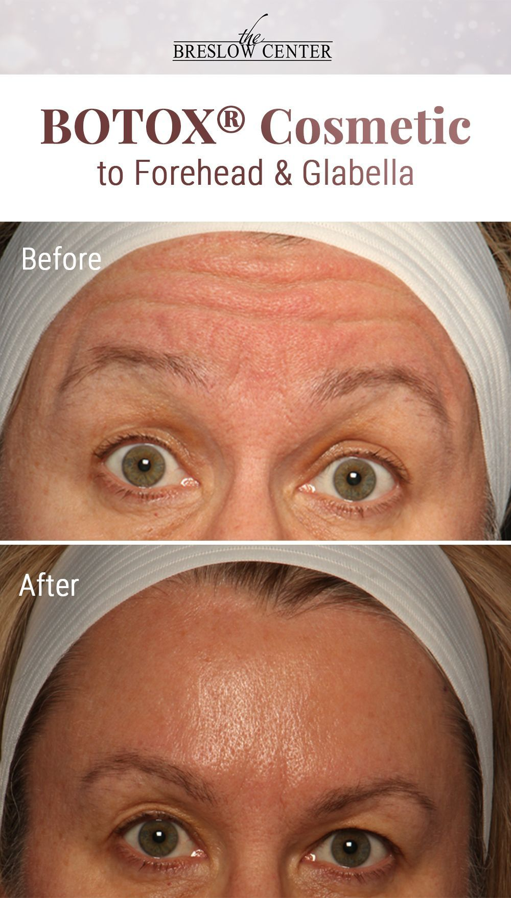 Botox to forehead and glabella  Nurse Injector: Sharon