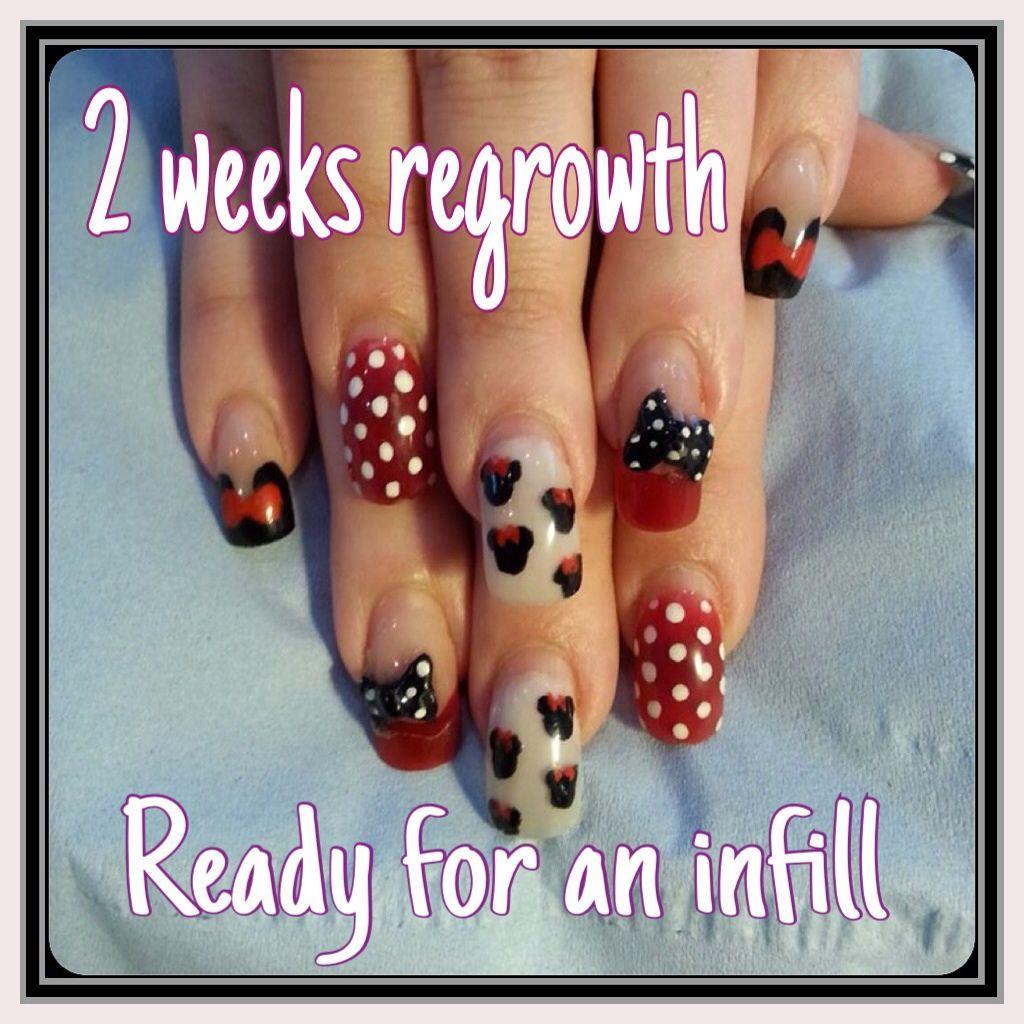 Acrylic Nails 2 Weeks Regrowth 3d Acrylic Nails Painted Nail Art Nail Enhancement