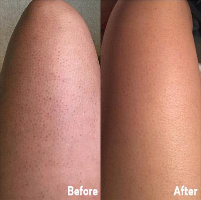 Photo of Skin Exfoliating Shower Sponge