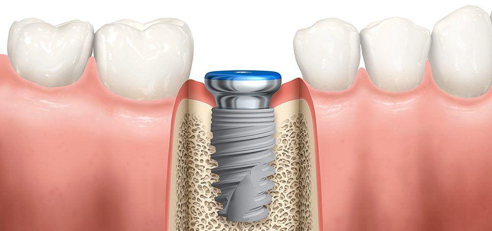 Does insurance cover dental implants implants dental