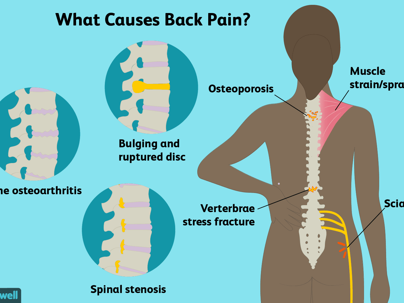 11++ Osteoporosis and upper back pain viral