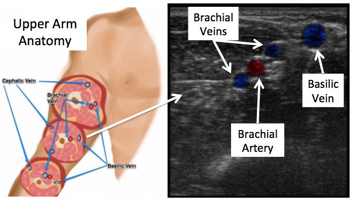 Brachial Vein On Ultrasound Artery Vein