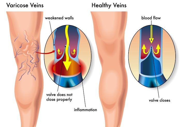 психосоматика варикозное расширение вен на ногах